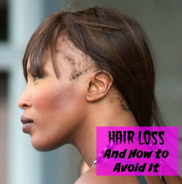 Natural Way To Prevent Hair Loss